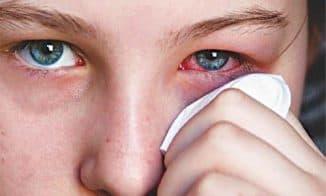 аллергия под глазами