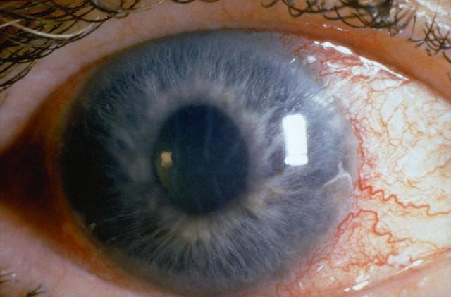 Закрытоугольная глаукома: причины и способы лечения