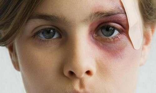 Как подобрать мазь от синяков под глазами после удара?