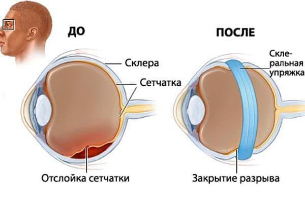 Как лечить помутнение стекловидного тела глаза