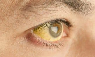 желтый цвет глаз