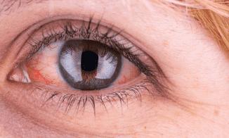 резь в глазах причины и лечение
