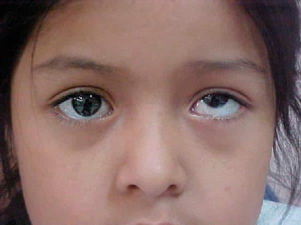 Как выглядят очки с астигматизмом
