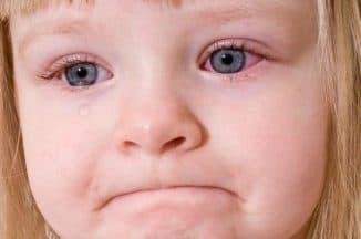 конъюнктивит у детей симптомы