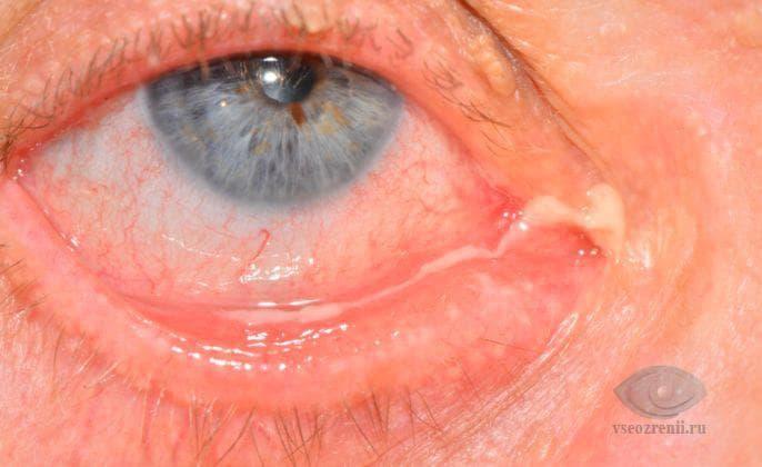 Гноятся глаза у взрослого: причины и лечение