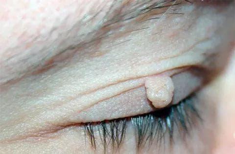 Папиллома на веке глаза: почему появляются и как удалить папилломы на верхнем и нижнем веке