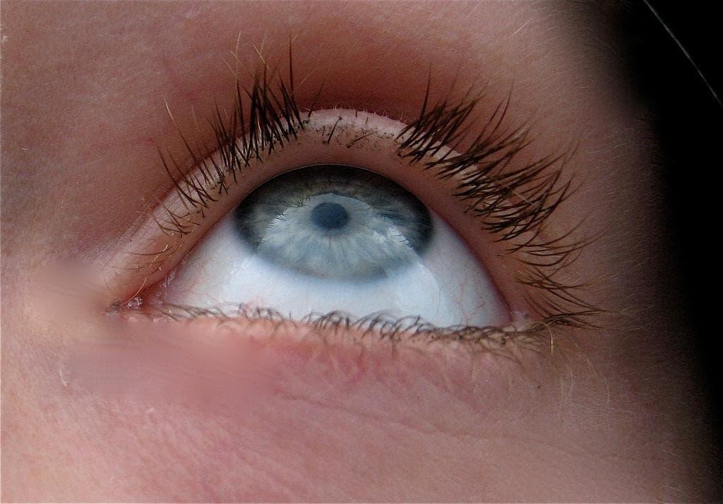 Что делать если выпадают ресницы и брови? Выпадение волос, бровей и ресниц Причины выпадения волос и ресниц
