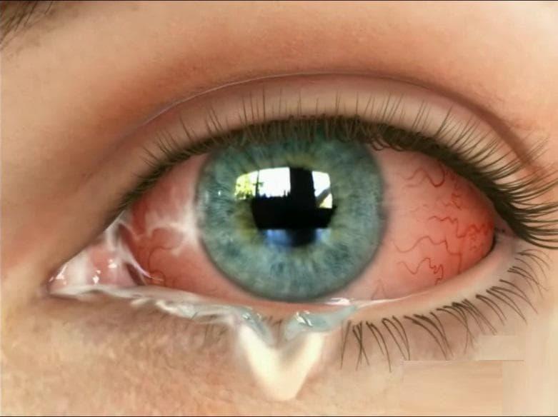 Выделения из глаз у взрослого человека