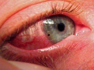 кровоизлияние в глаз лечение