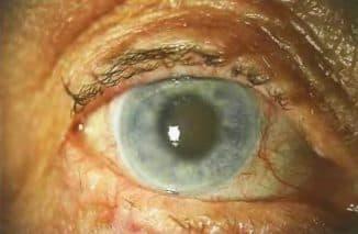 катаракта у пожилых людей лечение