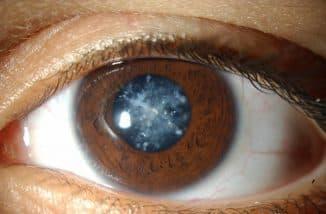 признаки катаракты глаза симптомы