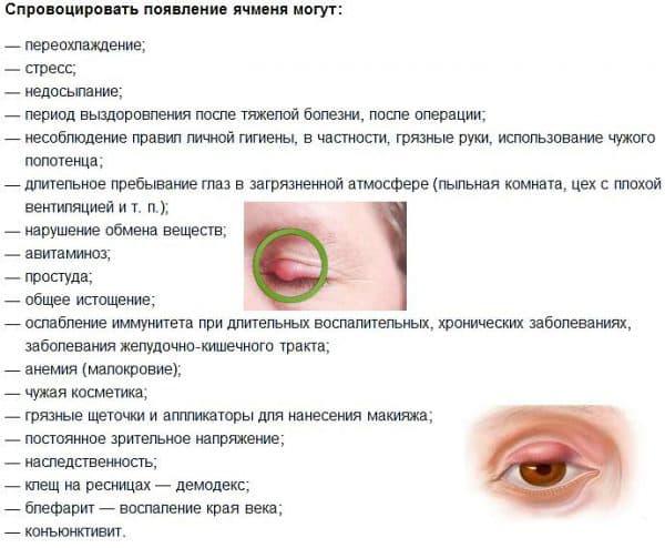 причины-вызывающие-ячмень-на-глазу