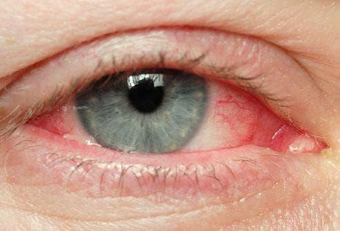 Глазные капли противовоспалительные и антибактериальные для глаз для детей