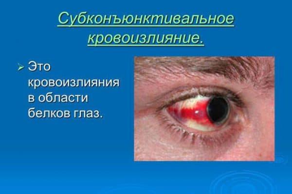 Кровоизлияние в сетчатку глаза после травмы
