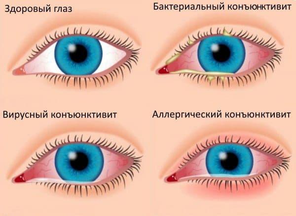 Покраснение кожи вокруг глаз - причины средства для кожи