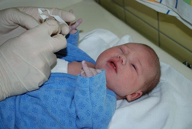 Закупорка слезного канала у новорожденных – массаж: как делать при дакриоцистите