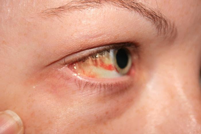 Лечение коньюктивита у взрослых препараты капли