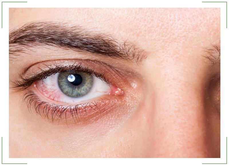 Глазные капли при ношении контактных линз
