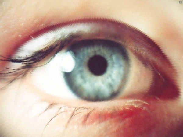 миопия, миопия слабой степени, миопия 1 степени, миопия средней степени, лечение близорукости, миопия глаз, миопия высокой степени что это такое, близорукость у детей школьного возраста лечение,