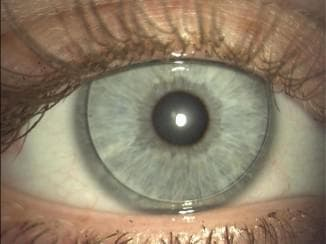 торические линзы что это такое, торические контактные линзы, торические линзы acuvue oasys, однодневные торические линзы, торическая интраокулярная линза, как одевать торические линзы, торические линзы acuvue oasys for astigmatism