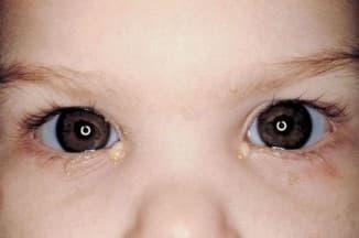конъюнктивит у грудного ребенка, чем лечить вирусный конъюнктивит у ребенка, конъюнктивит у ребенка 3 года, аденовирусный конъюнктивит у детей лечение, бактериальный конъюнктивит у детей чем лечить, бактериальный конъюнктивит у детей, конъюнктивит у детей причины, конъюнктивит у ребенка 3 лет лечение