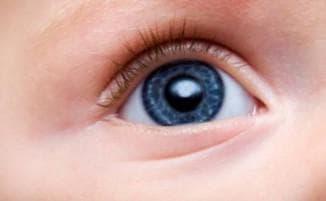 конъюнктивит профилактика у детей, чем лечить конъюнктивит у ребенка до года, конъюнктивит капли для детей, конъюнктивит у годовалого ребенка, конъюнктивит у ребенка можно ли гулять, повторный конъюнктивит у ребенка, вирусный конъюнктивит у детей фото, хламидийный конъюнктивит у детей, острый конъюнктивит у детей, сильный конъюнктивит у ребенка,