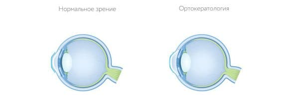 контактные линзы какие лучше выбрать, какие линзы лучше, какие линзы лучше выбрать, контактные линзы какие лучше выбрать отзывы, какие линзы лучше однодневные или месячные, однодневные контактные линзы какие лучше,