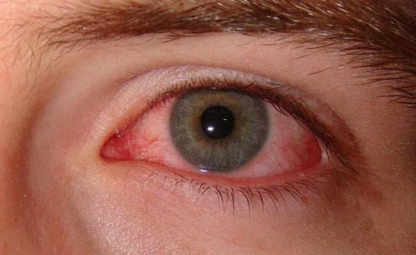 покраснение вокруг глаз причины, покраснения вокруг глаз у ребенка, покраснел белок глаза, покраснение кожи вокруг глаз причины, у ребенка красные глаза и чешутся, средство от покраснения глаз, покраснение под глазами и шелушение,