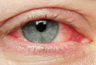 как убрать покраснение глаз, покраснение под глазами у ребенка, покраснение глаза лечение в домашних условиях, как вылечить покраснение глаз и жжение глаз, вокруг глаз покраснение и шелушение, как убрать покраснение глаз в домашних условиях, глаза красные и чешутся, лечение глаз от покраснения,