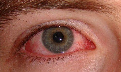 Увеит глаза симптомы и лечение