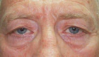 Птоз верхнее веко: причины, лечение народными средствами без операции, после ботокса, в домашних условиях