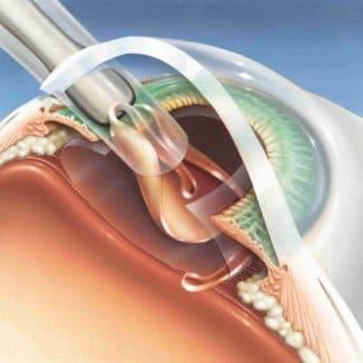 Послеоперационный период после удаления катаракты факоэмульсификация