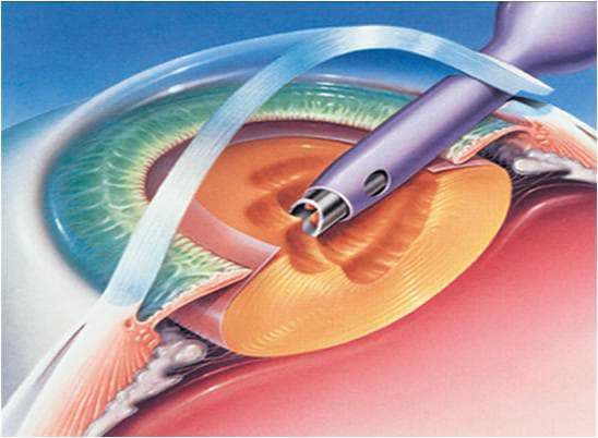 Факоэмульсификация катаракты - это операция с имплантацией, ультразвуковая, набор, послеоперационный период, ИОЛ, видео
