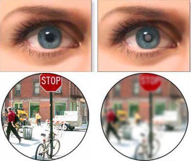 лечение катаракты без операции лекарственными средствами отзывы, симптомы, лечение, профилактика, у пожилых людей, начальная стадия
