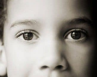 Как лечить астигматизм у детей