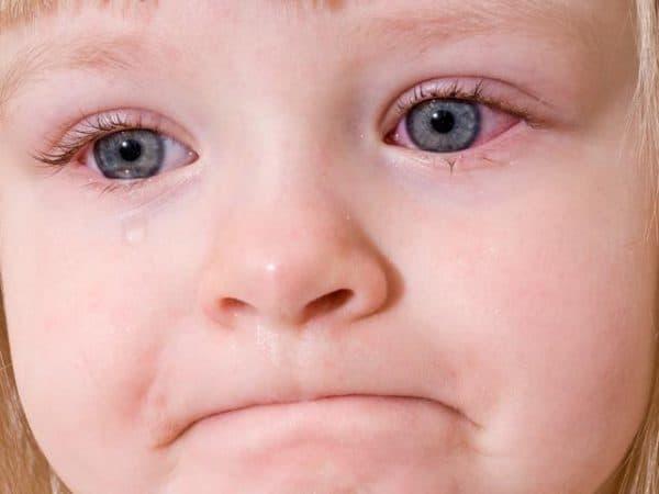 Бактериальный конъюнктивит у детей лечение: гнойный у взрослых, симптомы и лечение, как отличить вирусный от