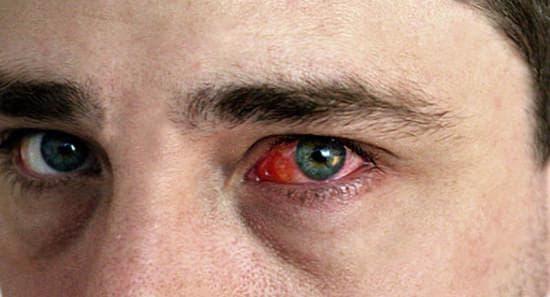 Глаз гноится и красный что делать у взрослого, новорожденного, чем лечить, массаж, чем обработать, опухоли, красный