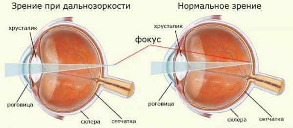 Дальнозоркость: как восстановить зрение, и близорукость, это плюс или минус, возрастная, глазные капли для улучшения зрения