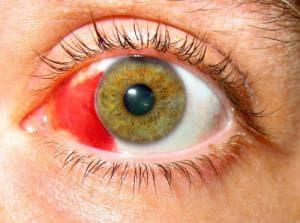 Причина красных белков глаз: лечение у ребенка, что делать, прожилками и желтизной