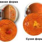 Макулярная дистрофия сетчатки глаза: чем опасно заболевание и как лечить?