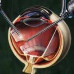 Признаки отслоения сетчатки глаза что это такое, сиптомы, лечение народными средствами, послеоперационный период, последствия