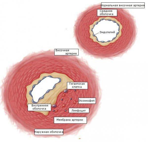 Височный артериит симптомы, лечение, гигантоклеточный, некротизирующий, лицевой артерии
