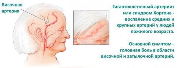 http://eyesdocs.ru/zabolevaniya/konyunktivit/bakterialnyj-konyunktivit-u-detej.html