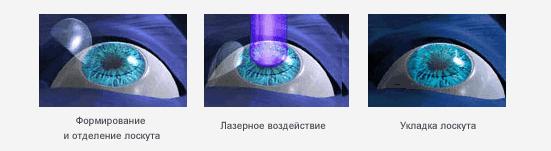Лазерная коррекция зрения при миопии высокой степени