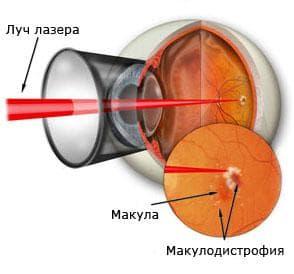 Лечение макулодистрофии лазером