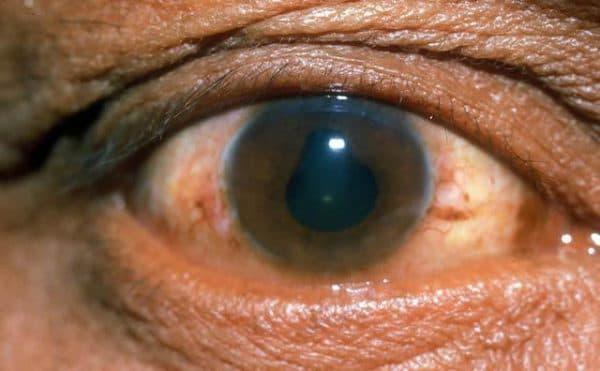 Острое и хроническое воспаление (увеит) переднего сосудистого сегмента глаз