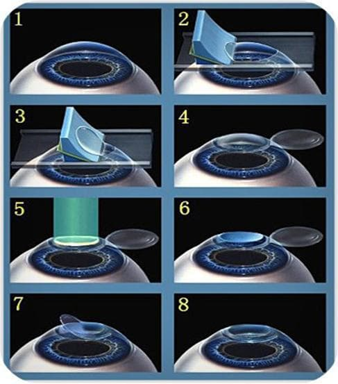 Фоторефрактивная кератэктомия