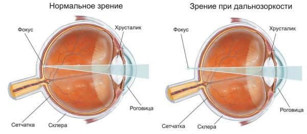 дальнозоркость или гиперметропия