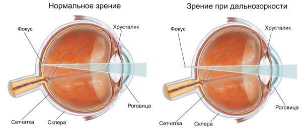 дальнозоркость и нормальное зрение