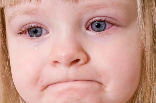 детский бактериальный конъюнктивит